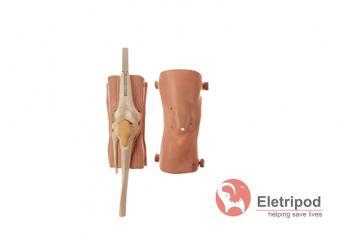 膝关节腔穿刺术部位图解